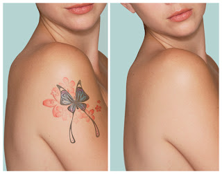 laser-tattoo-removal-3